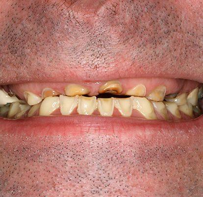 Wieso knirschen manche Menschen nachts mit den Zähnen?