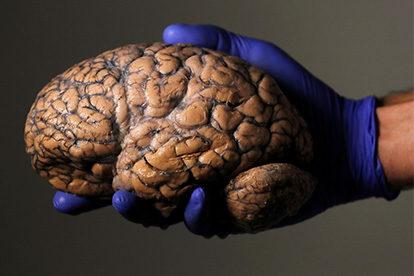 Wie fühlt sich ein Gehirn an?