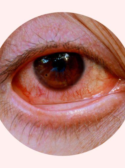 Erkennt man Kiffer an ihren roten Augen?
